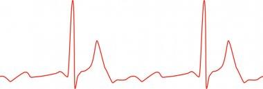 Sseamless ECG graph on white background. Vector illustration stock vector