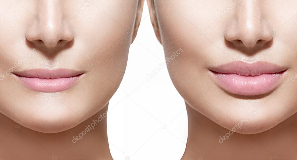 Before and after lip filler injections.