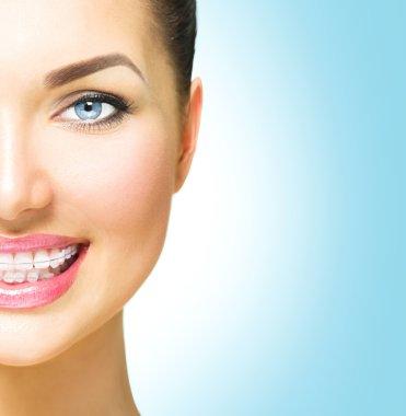 woman  with ceramic braces on teeth