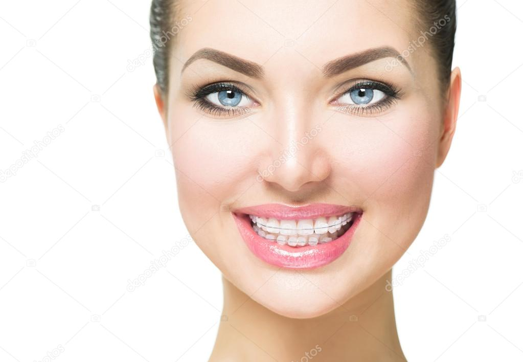 woman with ceramic braces on teeth