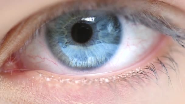 Womans eye blinking