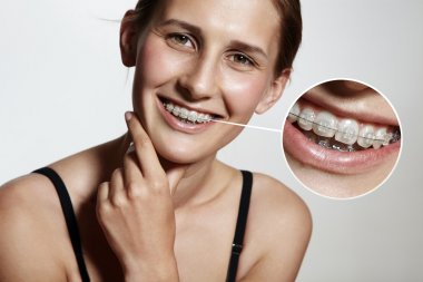 Girl with tooth brackets