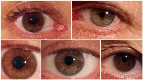 Eyeball montage. Macro shot.