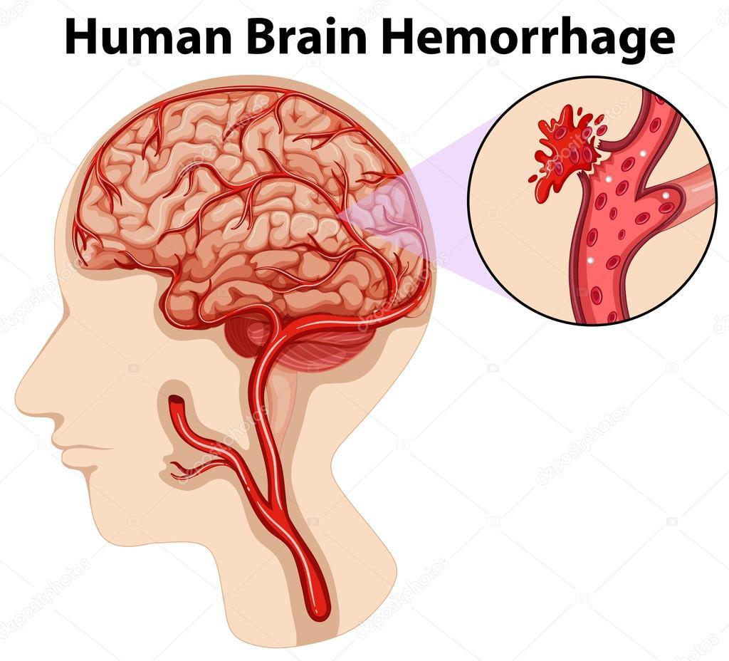 Diagrama de la hemorragia de cerebro humano — Vector de stock ...