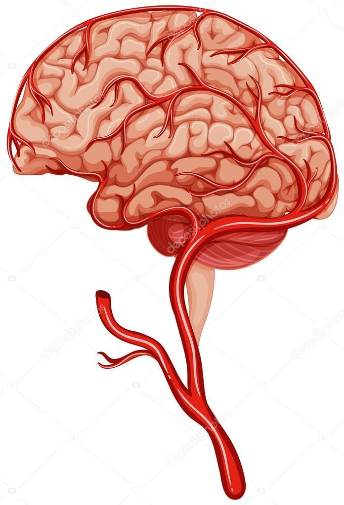 Coágulo de sangre en el cerebro humano — Vector de stock ...