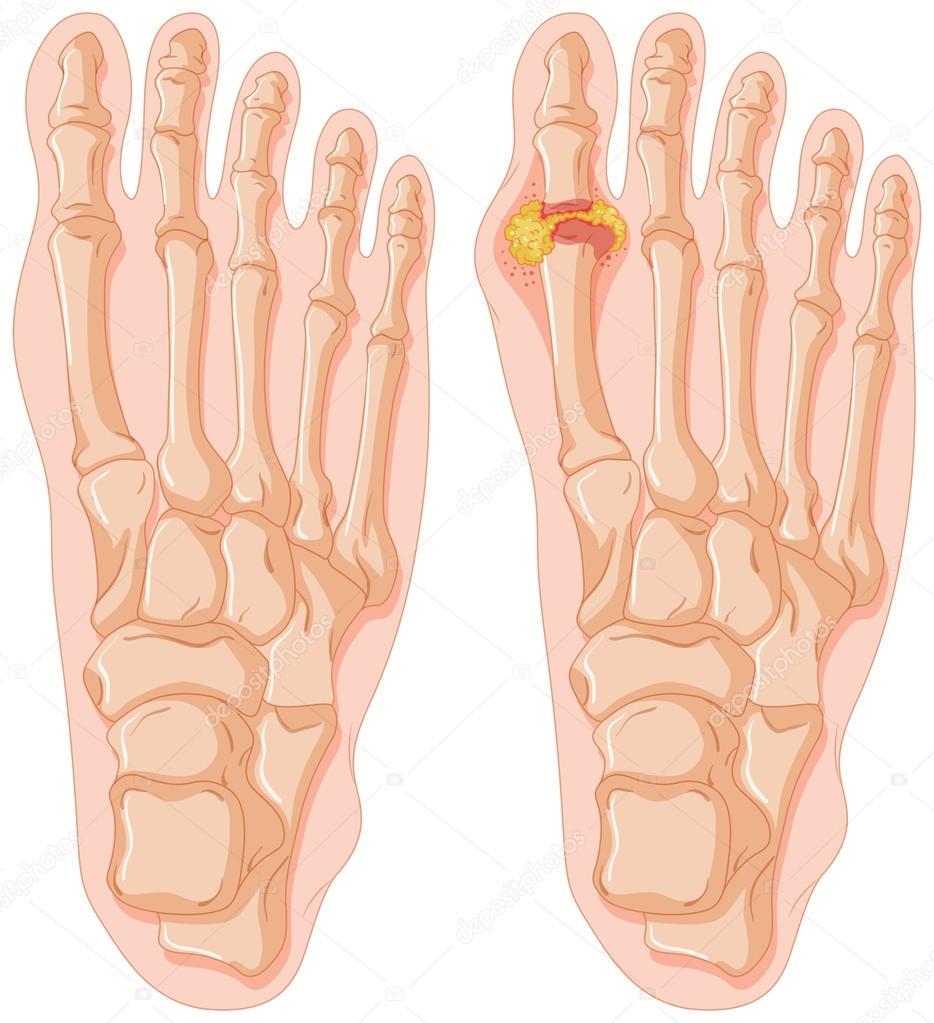 Diagrama de la gota en dedo del pie humano — Archivo Imágenes ...