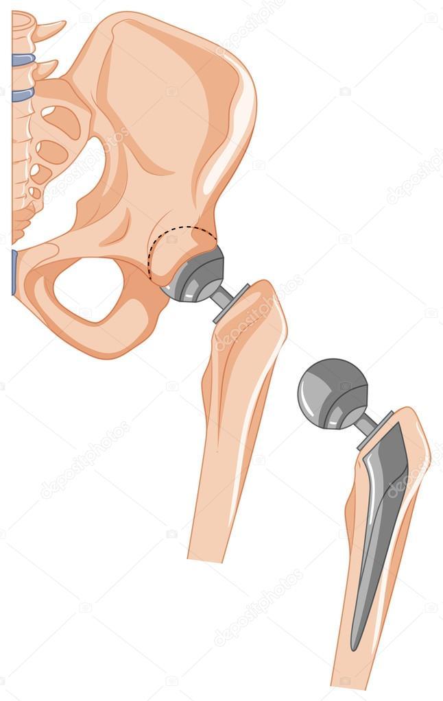 Diagrama de tratamiento de hueso de la cadera — Vector de stock ...