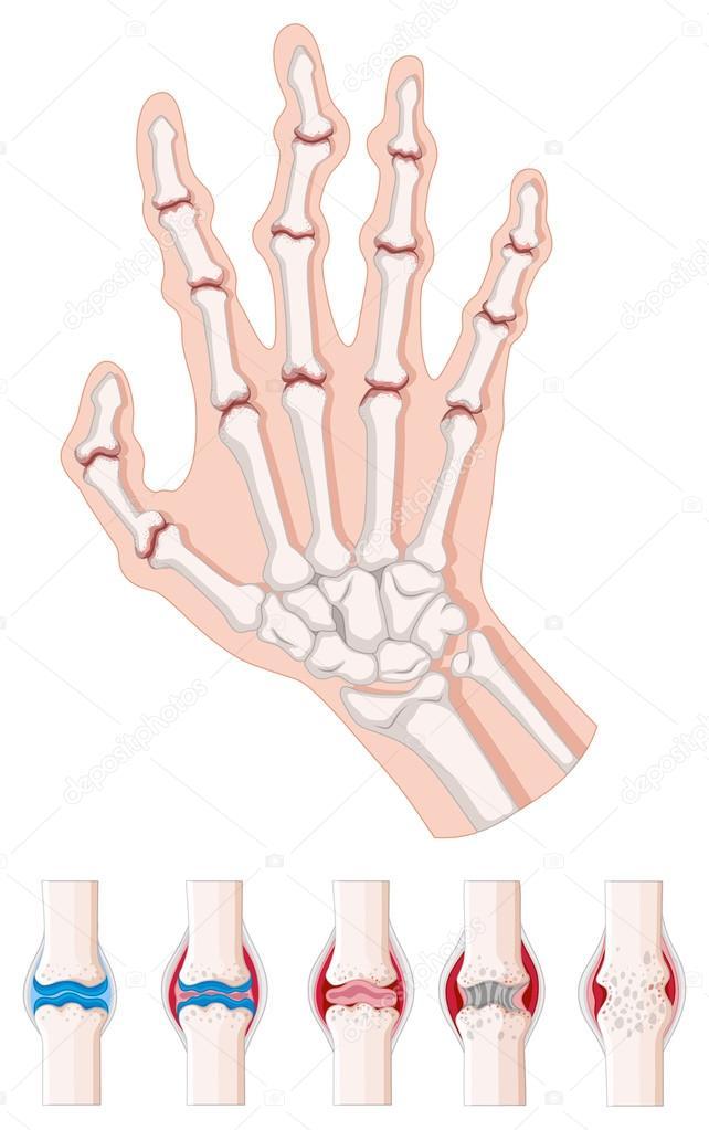 Diagrama de la artritis reumatoide en blanco — Vector de stock ...