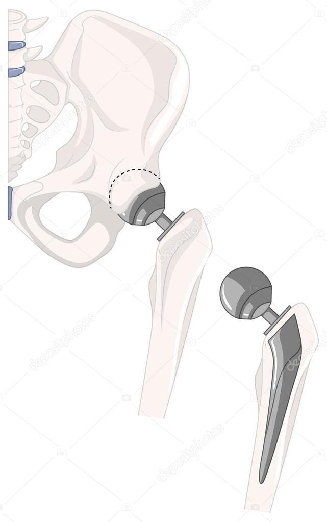 Tratamiento del hueso de la cadera humano — Vector de stock ...