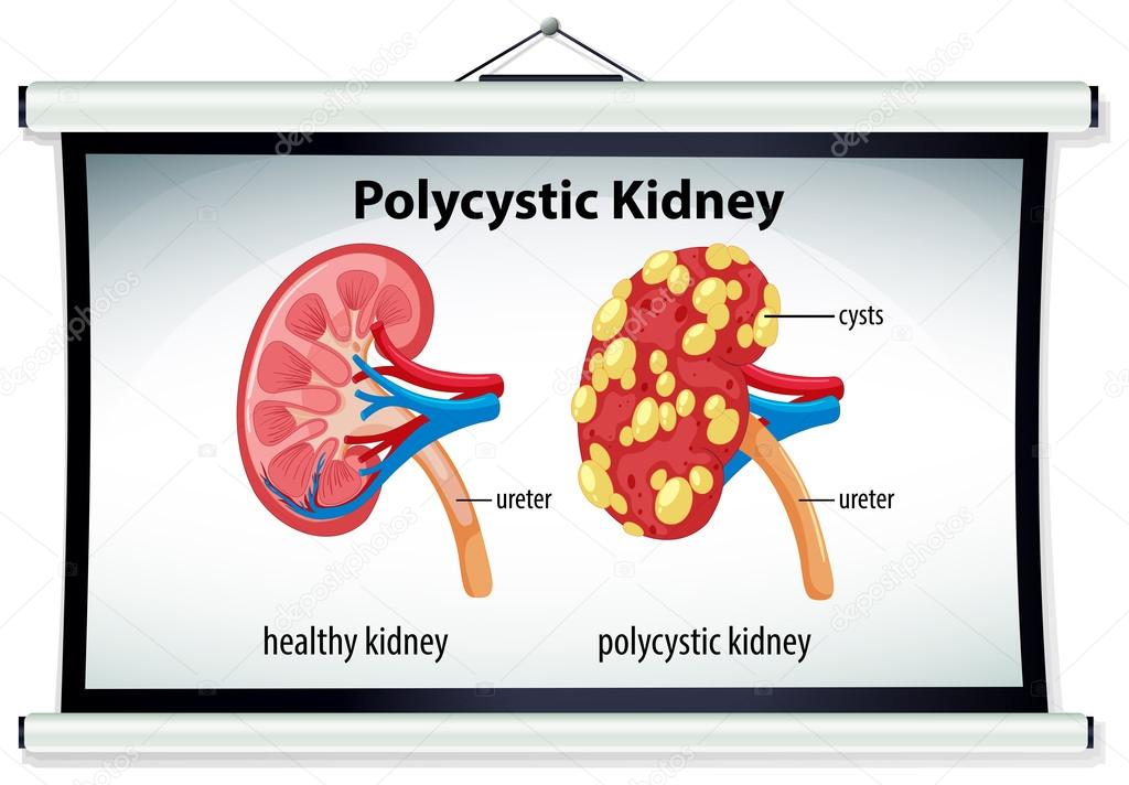 Diagram Of Polycystic Kidney Stock Vector Interactimages 115706778