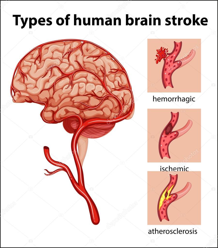 Tipos de accidente cerebrovascular cerebro humano — Vector de stock ...