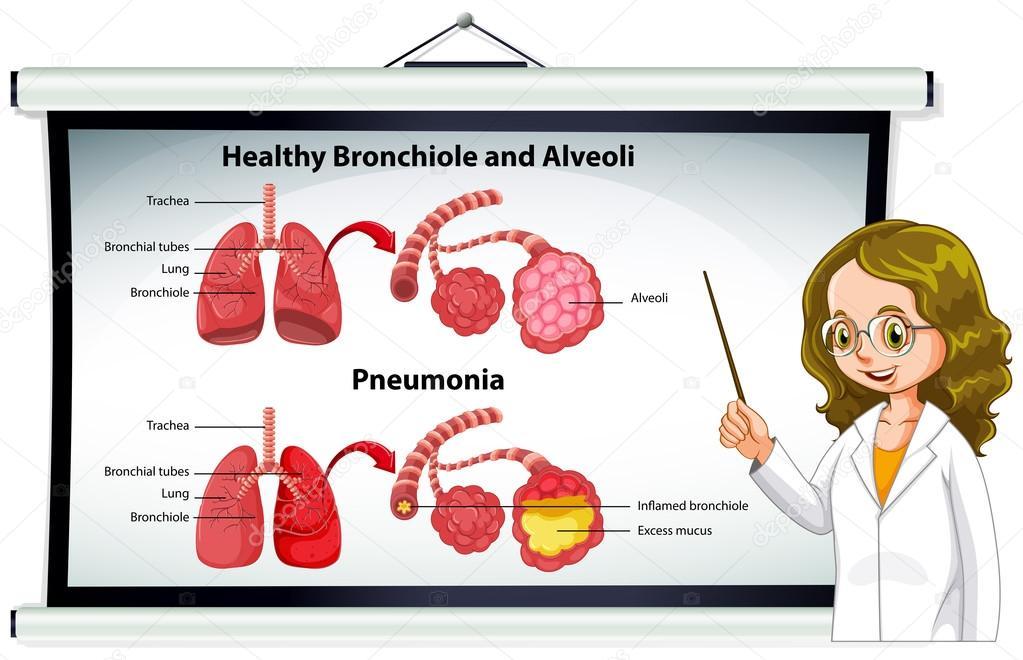 Médico explicando los alvéolos y bronquiolos saludable — Vector de ...