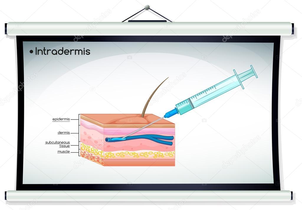 Diagrama que muestra la inyección de intradermis — Vector de stock ...