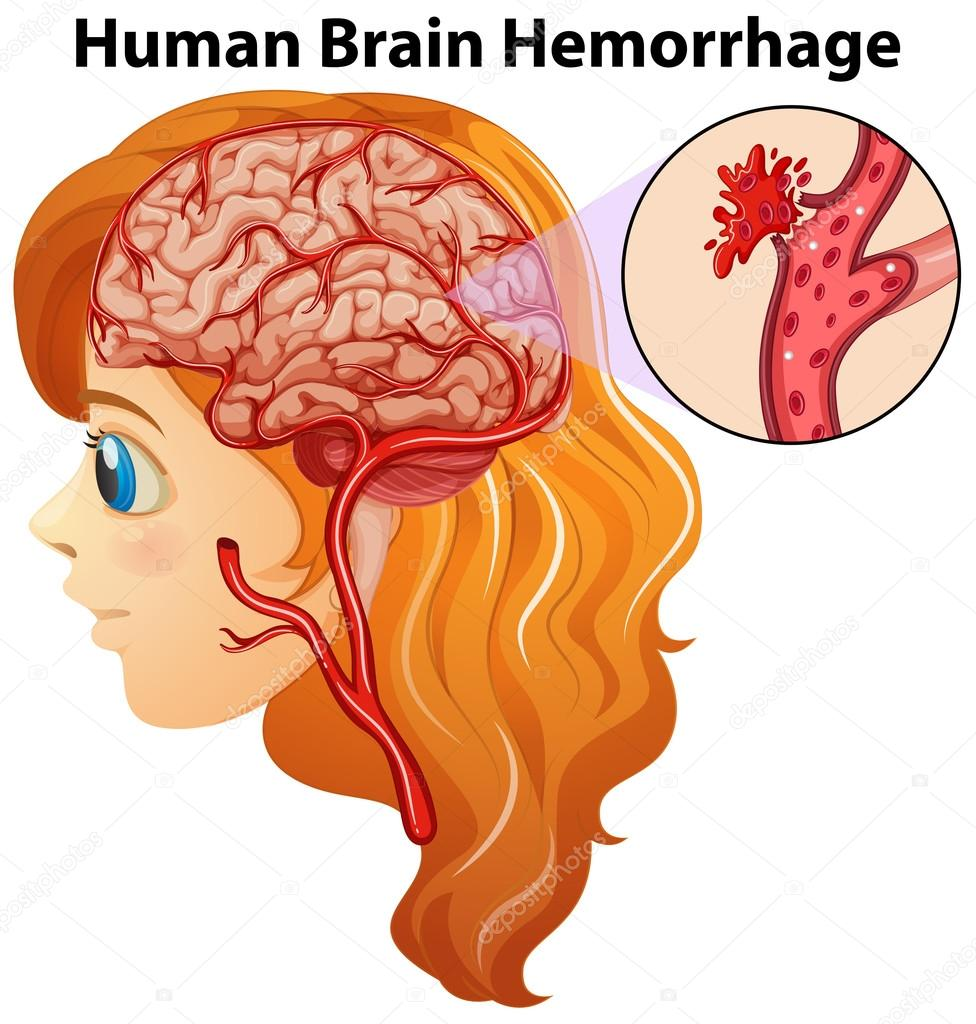 Diagram showing human brain hemorrhage stock vector diagram showing human brain hemorrhage illustration vector by interactimages ccuart Choice Image
