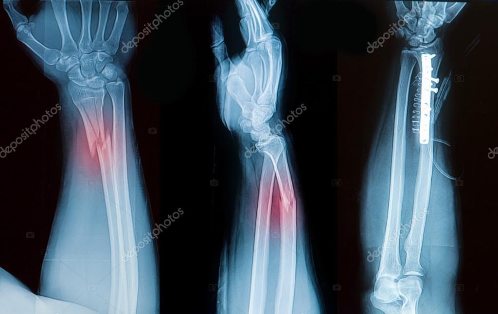 Röntgenbild von Borken Unterarm Knochen zeigen vorher-nachher ...