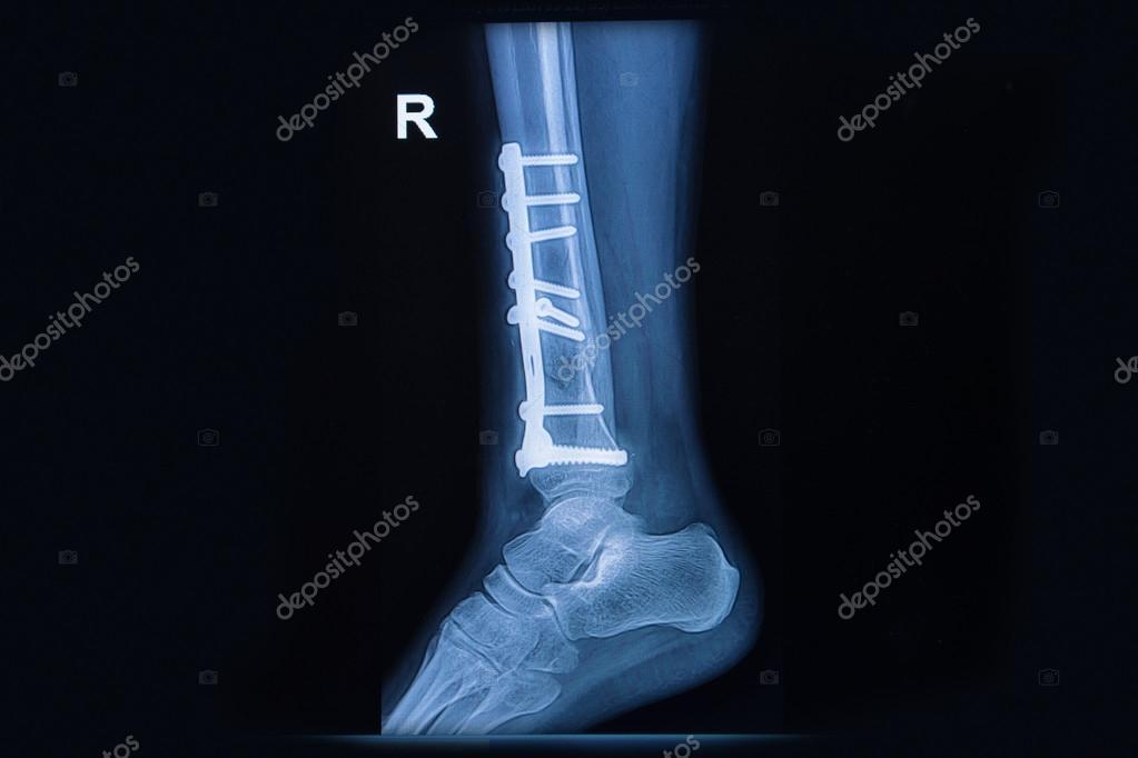 Film x-ray Knöchel zeigen Fraktur distalen tibia — Stockfoto ...