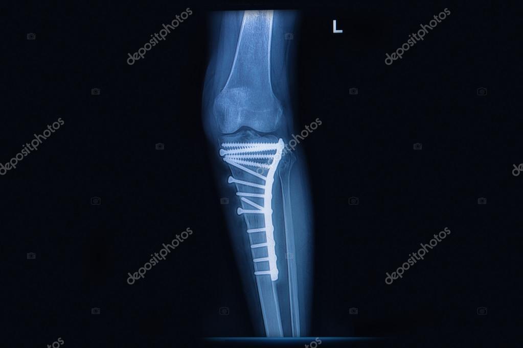 radiografía de fractura tibia(leg bone). hueso de la tibia con ...