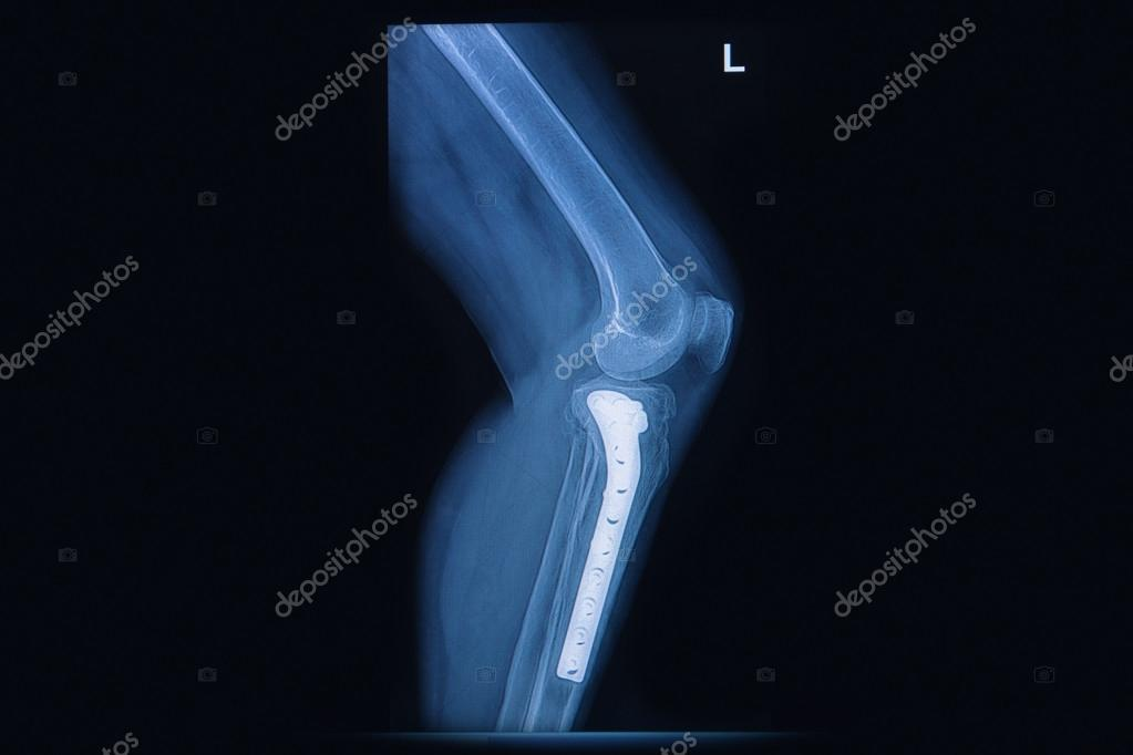 Röntgen der Bruch Tibia(leg bone). Schienbein Knochen mit internen ...