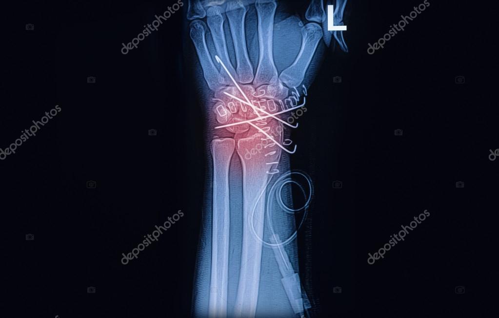 Röntgenbild Handgelenk gemeinsame, Radius-Fraktur mit k-Draht ...