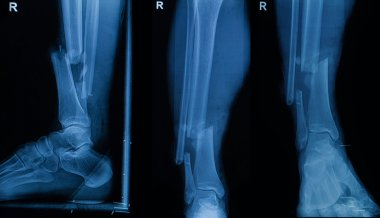 Collection of human x-rays  showing fracture of right leg ( frac