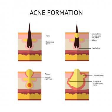 Formation of skin acne or pimple. The sebum in the clogged pore promotes the growth of a certain bacteria. Propionibacterium Acnes. This leads to the redness and inflammation associated with pimples.