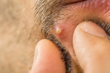 Extreme closeup of caucasian man with stub squeezing a pimple