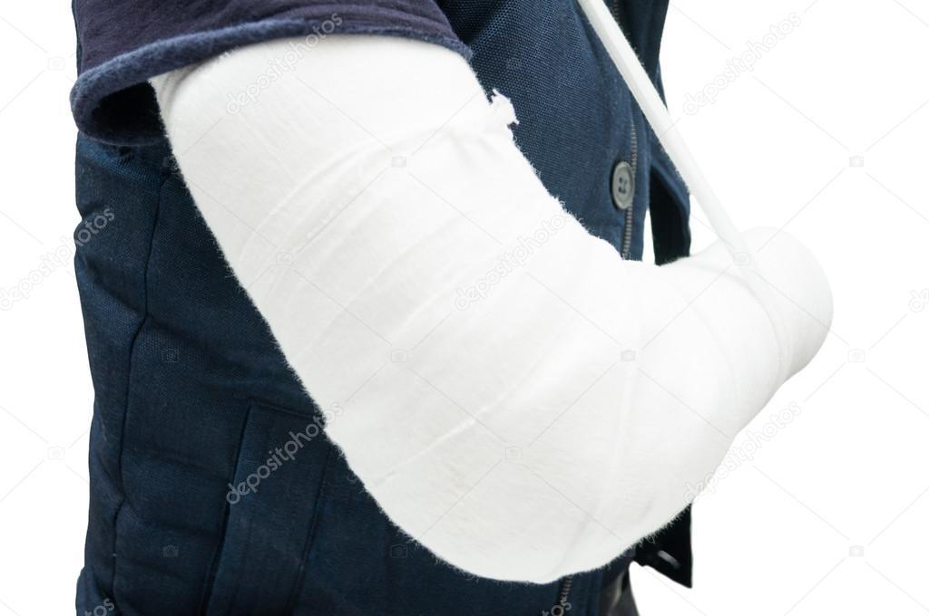Nahaufnahme des Patienten mit gebrochenen Unterarm nach Unfall ...