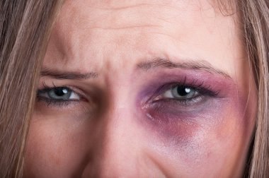 Sad eyes of a domestic violence victim