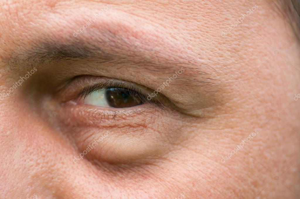 inflammation i ögonen