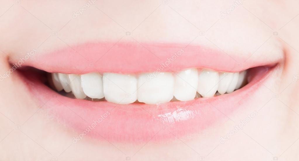 Sorriso Feminino Perfeito Apos O Clareamento Ou Branqueamento