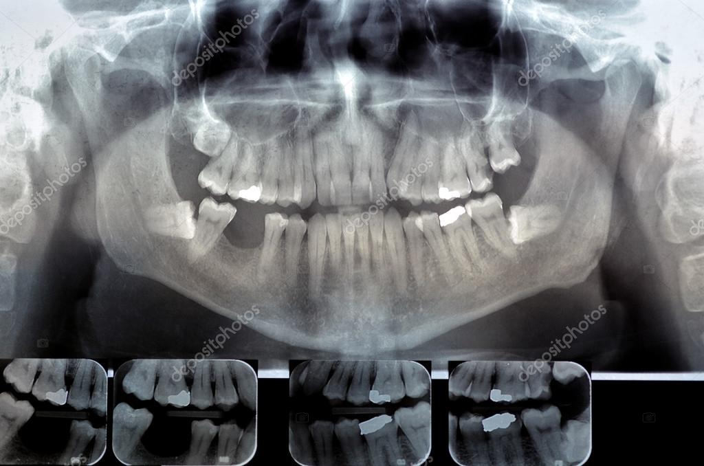 Dental radiography. Digital x-ray teeth scan of adult male — Fotos ...