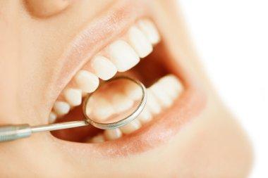 Dentist examining female teeth