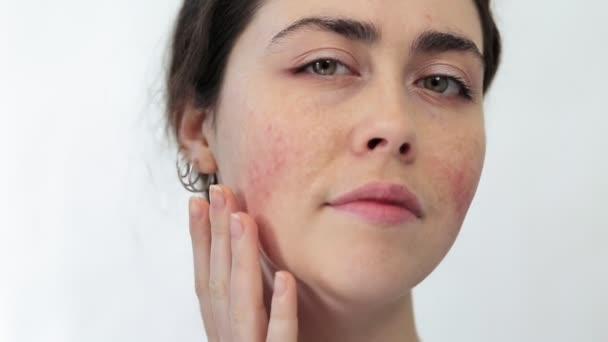 Nahaufnahme einer jungen Frau, die ihr Gesicht tastet und Rötungen auf ihren Wangen zeigt. Weißer Hintergrund. Das Konzept von Rosazea und Couperose.