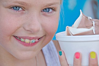 Girl with orthodontics and ice cream