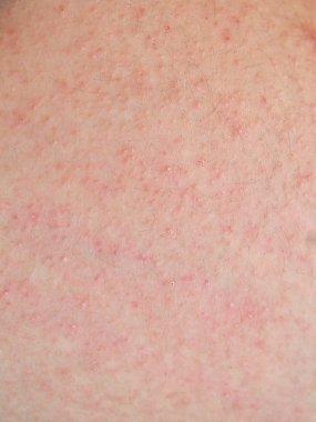 allergic rash dermatitis skin of patient