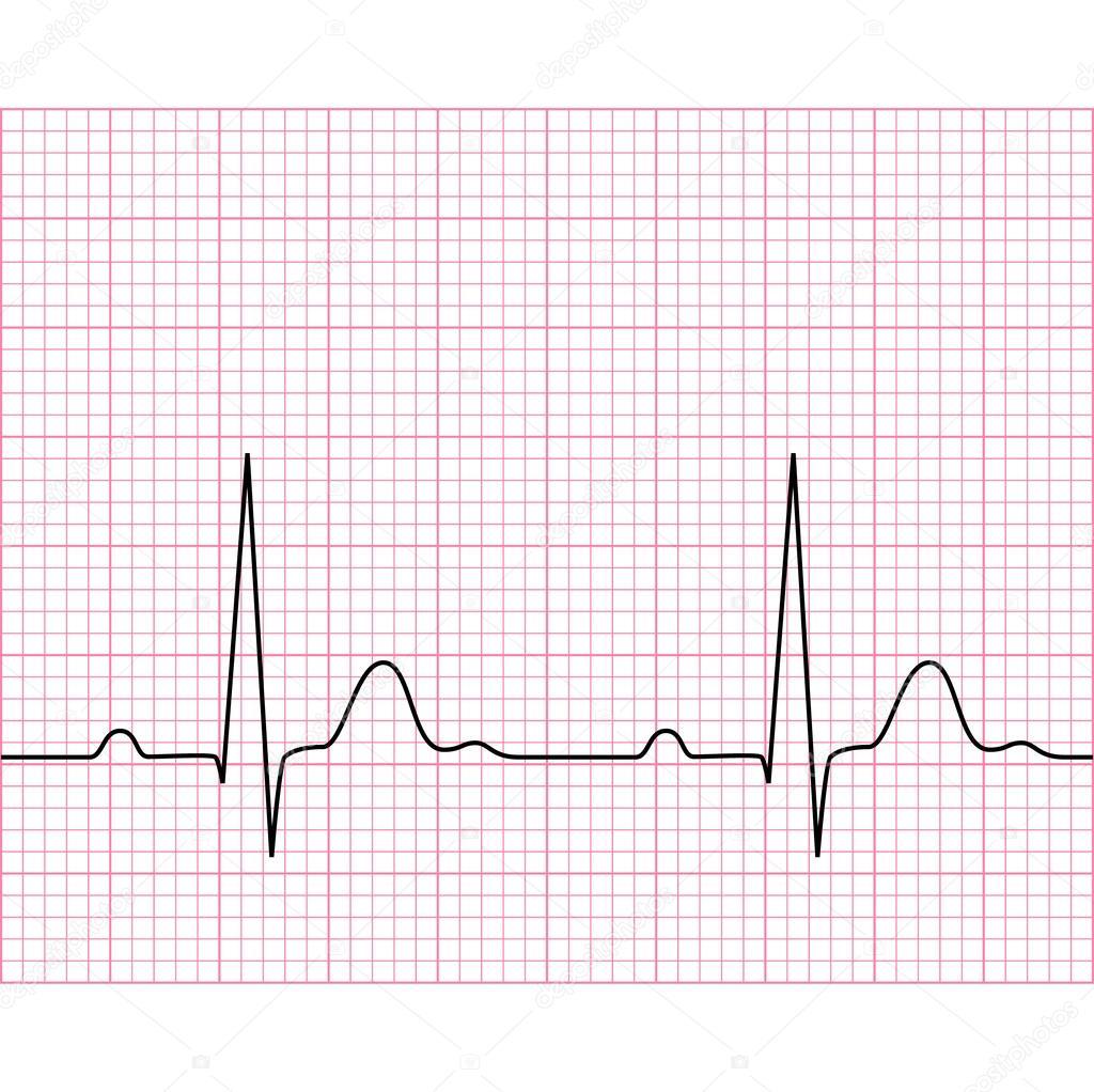 ilustra u00e7 u00e3o de m u00e9dico eletrocardiograma ecg em papel ekg vector srca objasnjenje ekg vectors explained