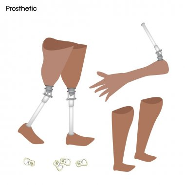 Set of Prosthetic Leg, Knee and Arm