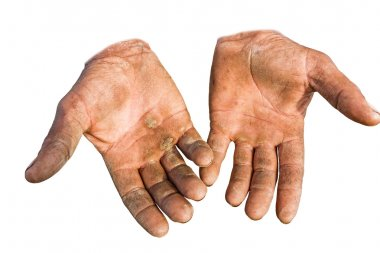 Injured open palms