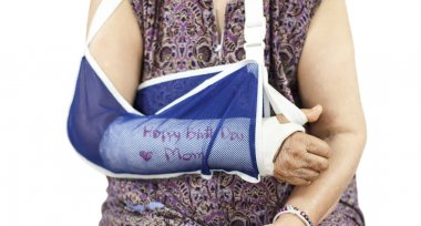 elderly woman with a broken arm on a plaster cast