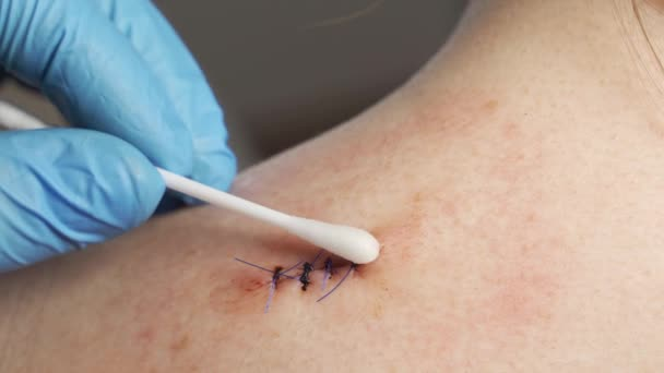 Zblízka lékař v lékařských sterilních rukavicích, tampon z bavlny, ošetřený antiseptickou krvácivou ránou na rameni dospívající dívky