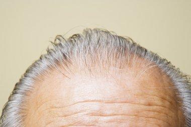Grey hair on top of elderly man's head