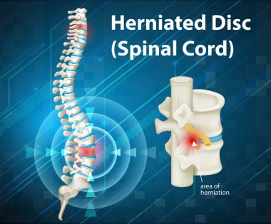 Diagram showing herniated Disc