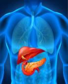 Fotografie Rakovina slinivky v lidském těle