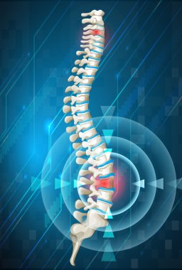 Human spine showing back pain