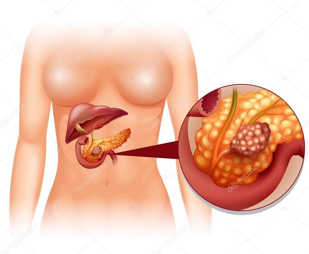 Cancer du pancréas chez la femme — Image vectorielle ...