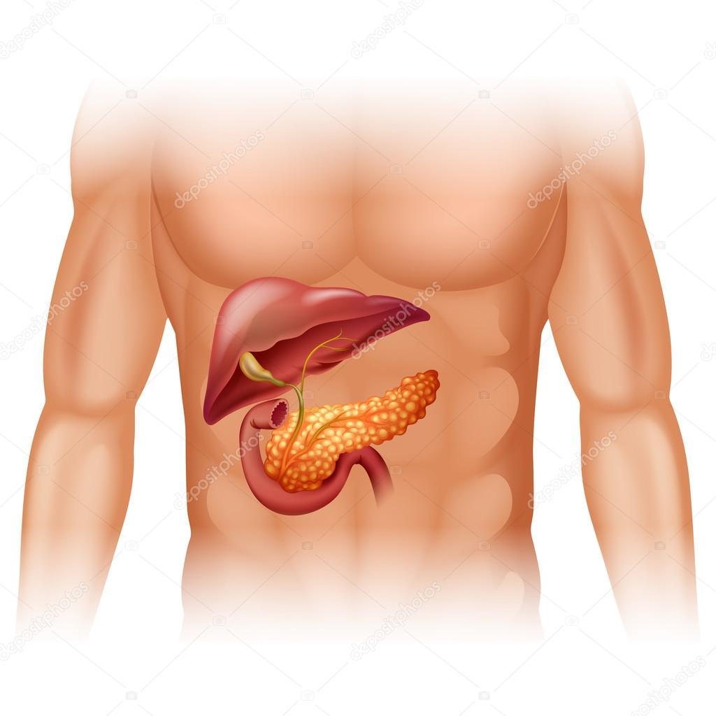 Diagrama de cáncer de páncreas en detalle — Archivo Imágenes ...