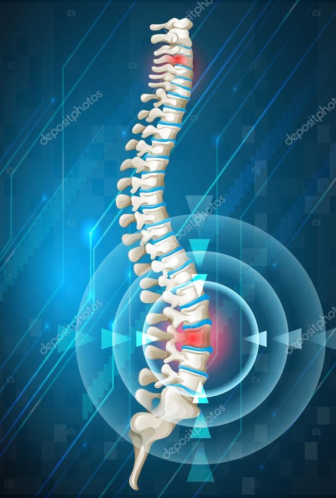Columna vertebral humana mostrando el dolor de espalda — Archivo ...