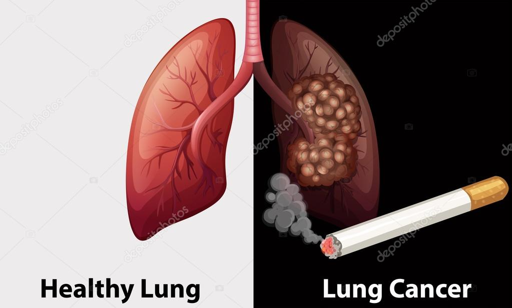 Healthy lung against lung cancer diagram — Stock Vector ...