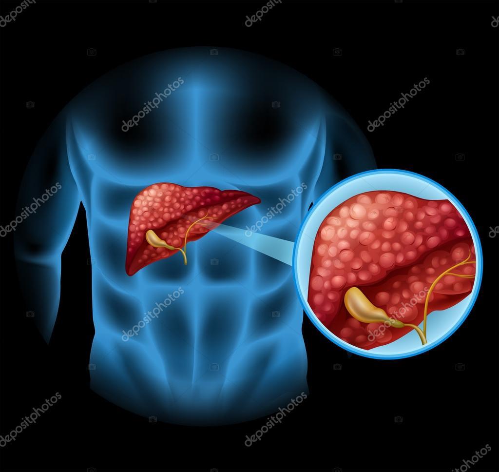 Diagrama de esclerosis en el cuerpo humano — Vector de stock ...