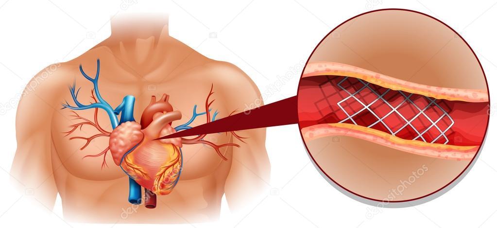 Heart disease diagram in human stock vector blueringmedia 82902824 heart disease diagram in human stock vector ccuart Choice Image